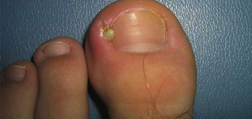 панариций пальца на ноге фото