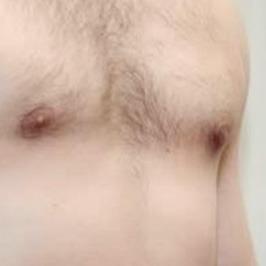 Причины гинекомастии