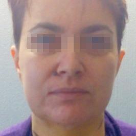 Коррекция опущения бровей и уголков глаз