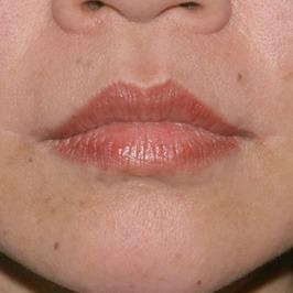 Операция по коррекции формы губ