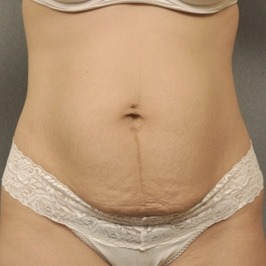 Горизонтальная и вертикальная абдоминопластика