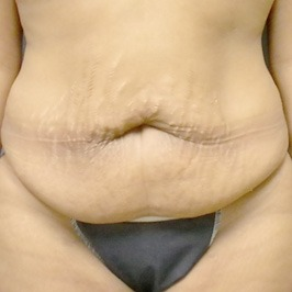 Коррекция пропорций тела