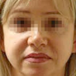 Коррекция опущения избыточной кожей верхних век
