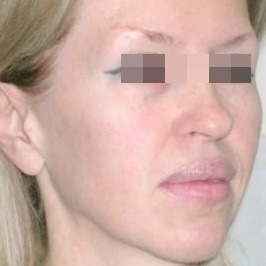 Первичный липофилинг лица