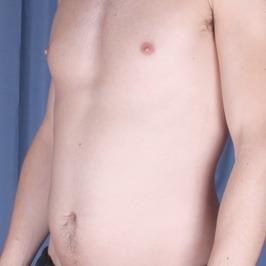 Липоскульптурирование тела