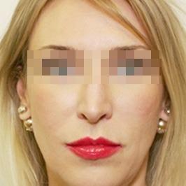 Эндоскопический лифтинг верхней зоны лица ПОСЛЕ операции