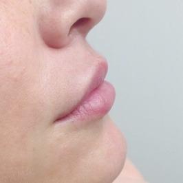 Поднятие уголков рта