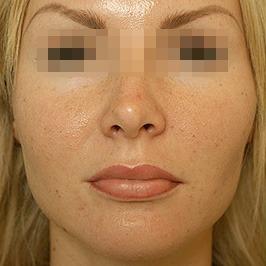 Устранение дефектов после неудачных косметологических процедур