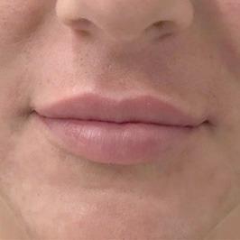Уменьшение расстояния от основания носа до верхней губы