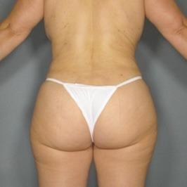 Противопоказания для липоскульптуры