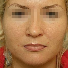 Подтяжка средней зоны лица ДО операции