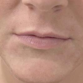 Хейлопластика при заячьей губе