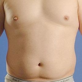 Преимущества липоскульптуры