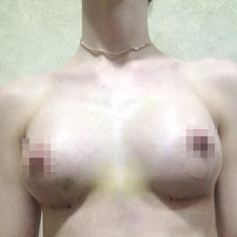Маммопластика ПОСЛЕ операции