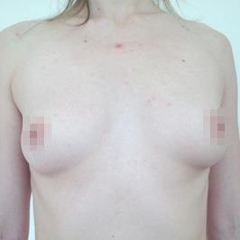 Маммопластика ДО операции