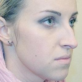 Хирургическое вмешательство на наружном носе