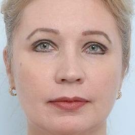 Удаление жировой ткани между кожей лица и слизистой щеки