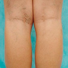 Технология лечения варикозной болезни лазером