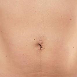 Оперативное лечение грыж — фото №10