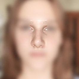 Пластика перегородки носа