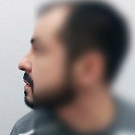 Непропорциональность отделов носа