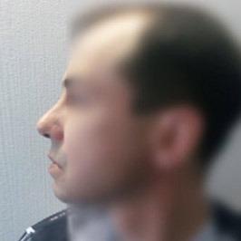 Показания к пластике носа