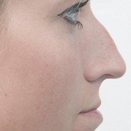 Исправление перегородки носа