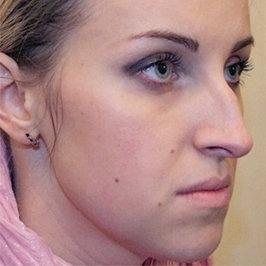 Коррекция формы носа ДО операции