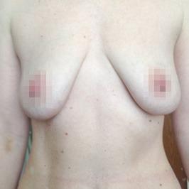 Mаммопластика  — фото №60