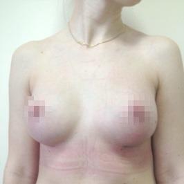 Mаммопластика  — фото №65