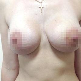 Mаммопластика  — фото №43