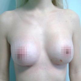 Mаммопластика  — фото №47