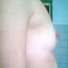 Mаммопластика  — фото №48