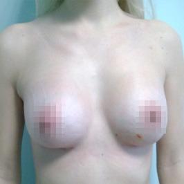 Mаммопластика  — фото №51