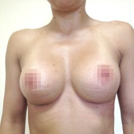 Mаммопластика  — фото №55