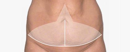 Показания к абдоминопластике