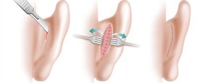 Этапы оперативного лечения лопоухости