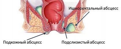 Хирургическое лечение парапроктита