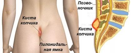 Эпителиальная копчиковая киста